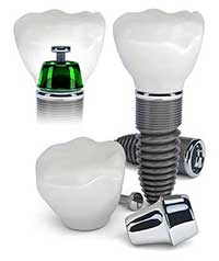 Dental Implants in Greensboro