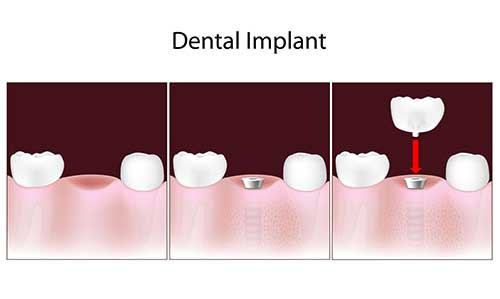 Greensboro Implant Dentist