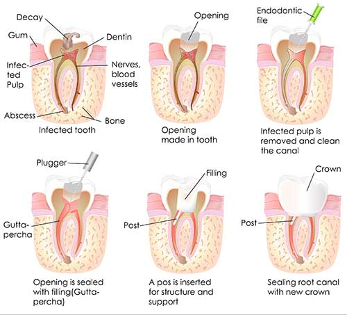 Greensboro Root Canal